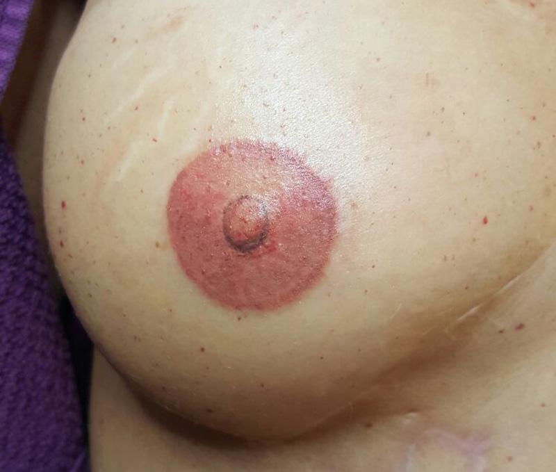 Areola Tepelhofreconstructie en littekencorrectie na behandeling